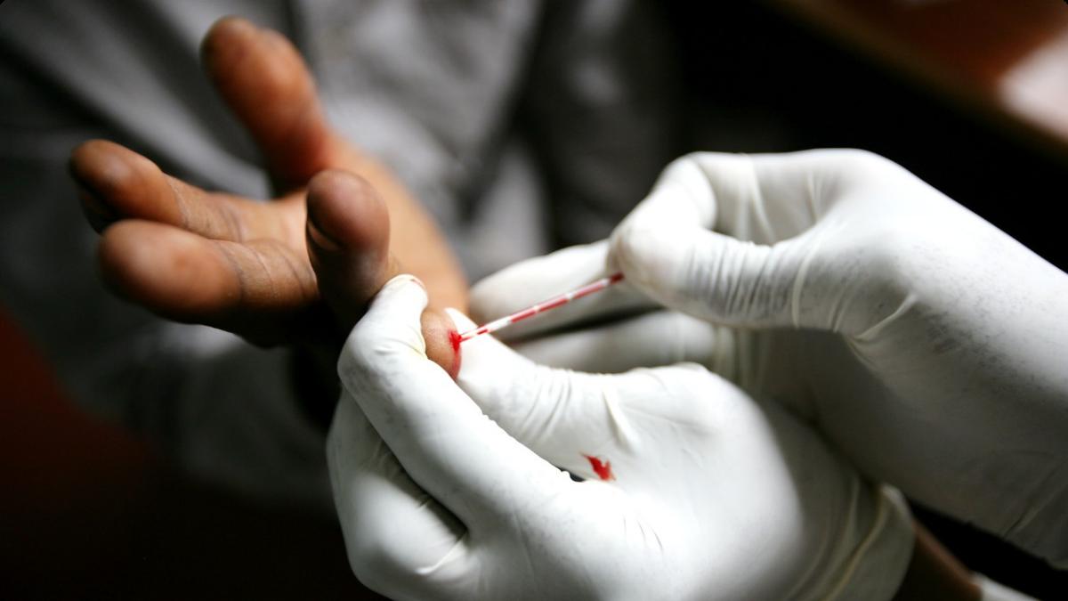 Aids secretariat gears up for regional testing day 2017 - Test hiv periodo finestra ...